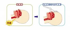 CPAP導入による気道の変化